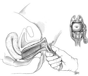 схематичное изображение пениса во влагалище общем, ядом