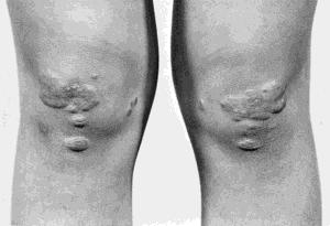 Tubo-eruptive xanthoma | definition of Tubo-eruptive ...