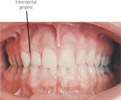 Gingiva Definition Of Gingiva By Medical Dictionary