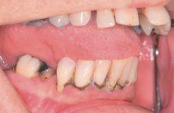 Black line dental stain   definition of black line dental ...