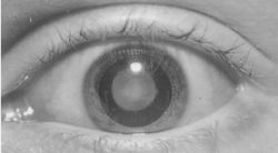 Cataract Definition Of Cataract By Medical Dictionary