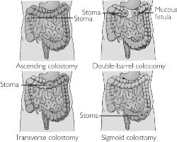 Differentiation Of Ileostomy From Colostomy Procedures Assessing The Nbsp Accuracy Current Procedural Terminology Codes