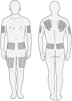 A Areas Of The Body Most Suitable For Insulin Injections Point Injection Should Be Varied Each Time Within Chosen Area