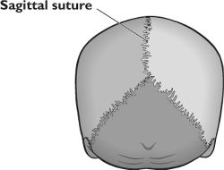 Sagittal sutures | definition of Sagittal sutures by ...
