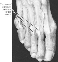 Symphysial tendon | definition of symphysial tendon by