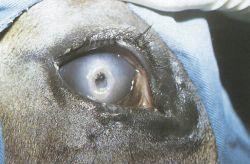 eye transplantation wikipedia