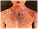 measles - an acute and highly contagious viral disease marked by distinct red spots followed by a rash