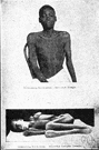 sleeping sickness - an encephalitis that was epidemic between 1915 and 1926