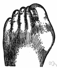 bunion - a painful swelling of the bursa of the first joint of the big toe