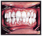 calculus - an incrustation that forms on the teeth and gums