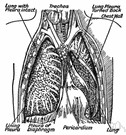 pleura - the thin serous membrane around the lungs and inner walls of the chest