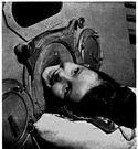 iron lung - respirator that produces alternations in air pressure in a chamber surrounding a patient's chest to force air into and out of the lungs thus providing artificial respiration
