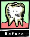 abscessed tooth - an abscess of a common kind in the tissue around a tooth