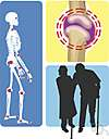 rheumatoid arthritis - a chronic autoimmune disease with inflammation of the joints and marked deformities