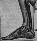 Achilles tendon - a large tendon that runs from the heel to the calf