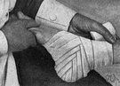 wrench - twist suddenly so as to sprain